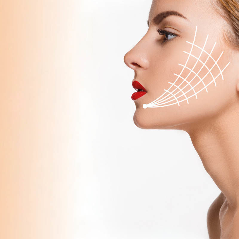 Face Thread Lift – Look 10 Years Younger just like the world's biggest movie stars!