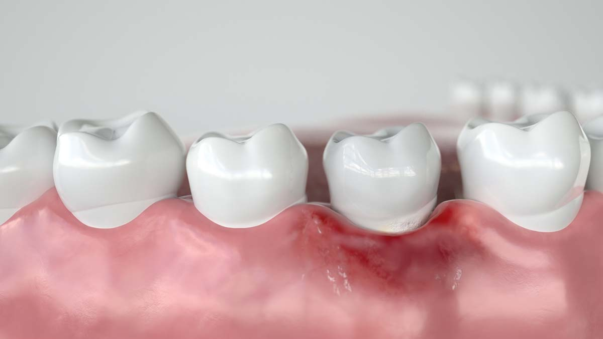Caries in three stages - Stage 1 Gingivitis