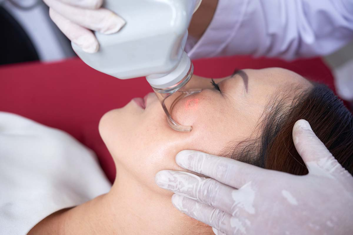 laser therapy for skin pigmentation