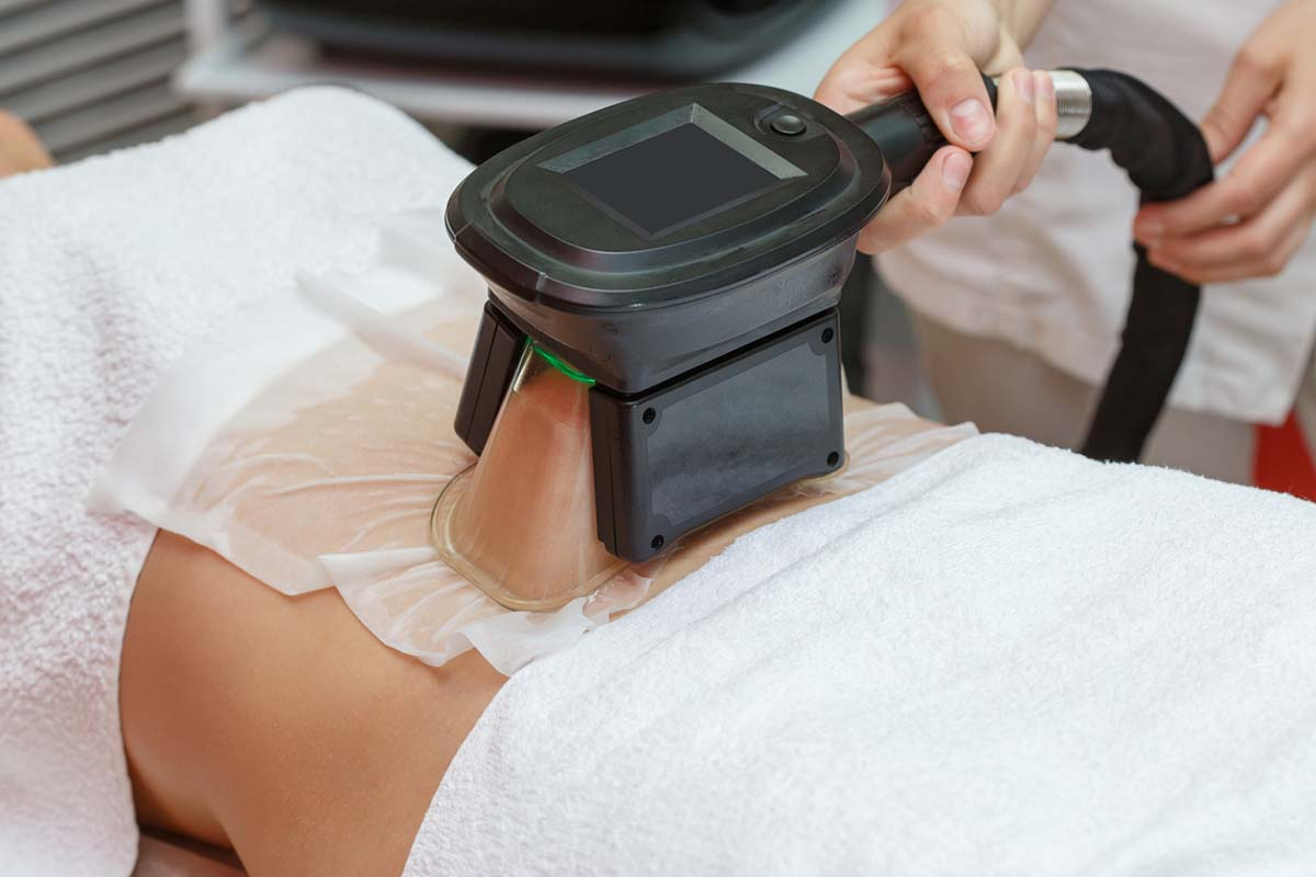 Woman getting cryolipolysis fat treatment procedure