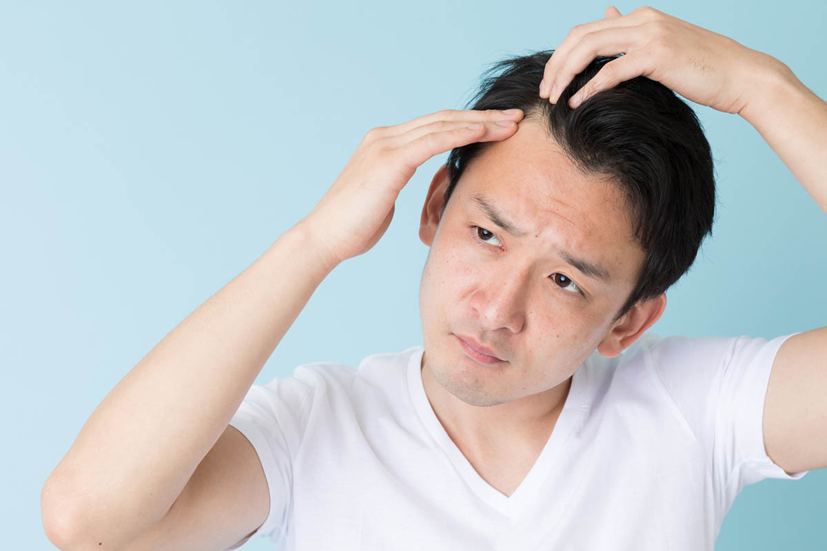 Stop Living with Male Pattern Hair Loss Like These Celebs by Visiting a Men's Clinic in Singapore