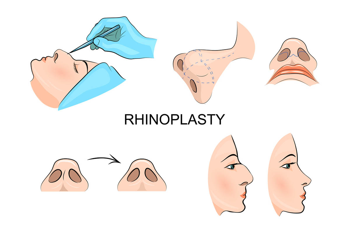 Rhinoplasty cosmetic surgery